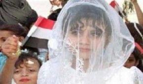 Υεμένη: 8χρονο κορίτσι πέθανε από εσωτερική αιμορραγία μετά την πρώτη νύχτα γάμου με τον 40χρονο σύζυγότης