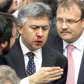 Άγριο ξύλο πάλι στην τουρκική Βουλή – Σπασμένες μύτες και χέρια!ΒΙΝΤΕΟ