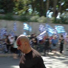 ΝΤΟΚΟΥΜΕΝΤΟ: Η στιγμή της απρόκλητης επίθεσης στην συγκέντρωση της Χρυσής Αυγής στο Εφετείο – Φωτό,Βίντεο