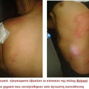 KOBANÎ: Επίθεση με χημικά όπλα χθες τοβράδυ