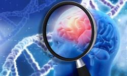 Αλτσχάιμερ: Ο ρόλος της ζάχαρης στην ανάπτυξη τηςνόσου