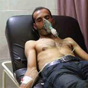Οι Τούρκοι επιτέθηκαν με χημικά στο Αφρίν [εικόνες &βίντεο]