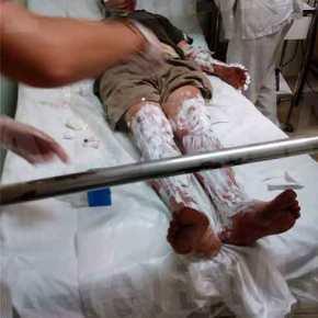Θρίλερ με εγκλωβισμένους στο Μάτι: Τουλάχιστον 10 άτομα στο νοσοκομείο μεεγκαύματα